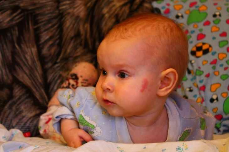 Причины и места пятен после родов - почему возникают, как диагностируются и когда следует обращаться к врачу (95 фото)