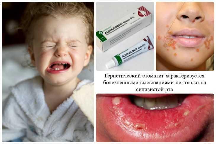 Стоматит у детей: первые симптомы, эффективные средства и методы лечения и снятия боли (125 фото и видео)