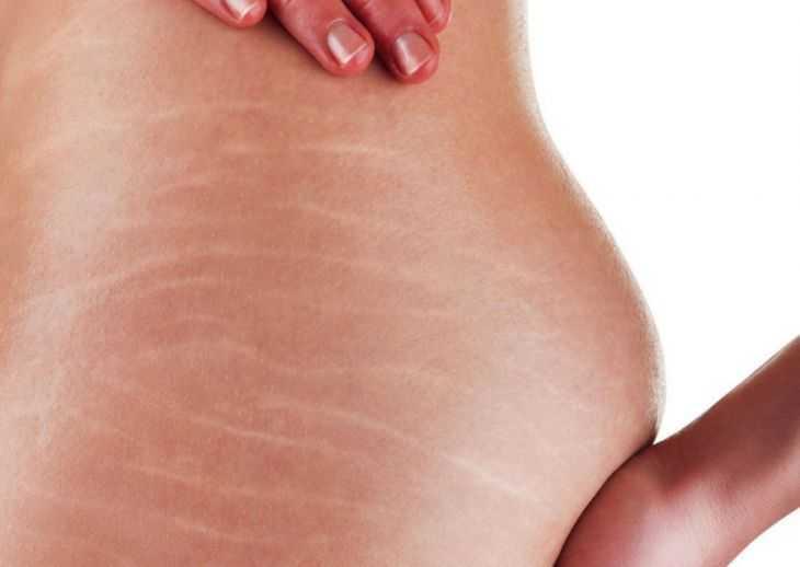 Какой крем нужен после родов - методы и советы восстановления женской красоты и здоровья (110 фото + видео)