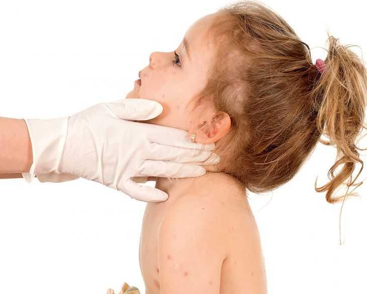 Причины краснухи у детей - разбор причин, основных симптомов и обзор современные методики лечения (115 фото и видео)