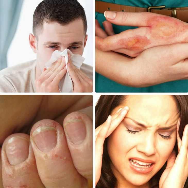 Причины и проявления аллергии у новорожденных - первые симптомы, основные проявления и причины возникновения заболевания у самых маленьких