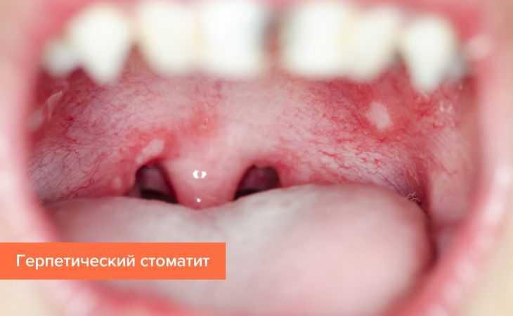 Причины стоматита у детей - симптомы, диагностика и варианты лечения инфекций у детей разных возрастов (115 фото и видео)
